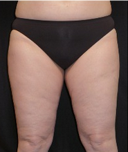 25-34 year old woman treated with CoolSculpting after 1911251