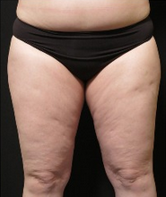25-34 year old woman treated with CoolSculpting before 1911251