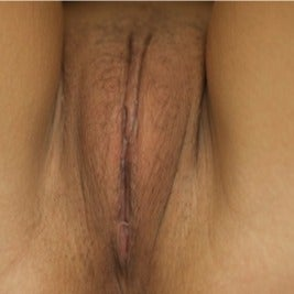 Labiaplasty after 1897705