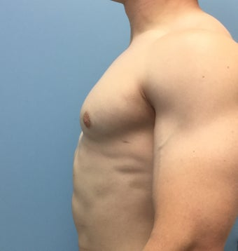 18-24 year old man treated with Male Breast Reduction after 2303802