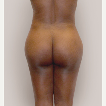 25-34 year old woman treated with Brazilian Butt Lift after 3446835
