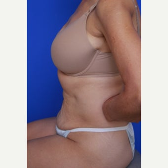 55- year old woman treated with CoolSculpting after 2256647
