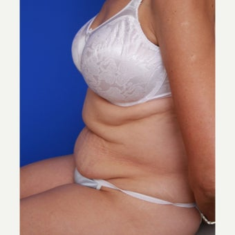 55- year old woman treated with CoolSculpting before 2256647