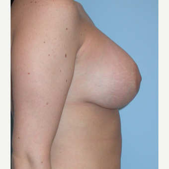 18-24 year old woman treated with Breast Lift after 3076192