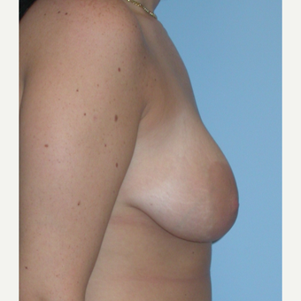 18-24 year old woman treated with Breast Lift before 3076192