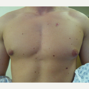18-24 year old man treated with Male Breast Reduction before 3501845