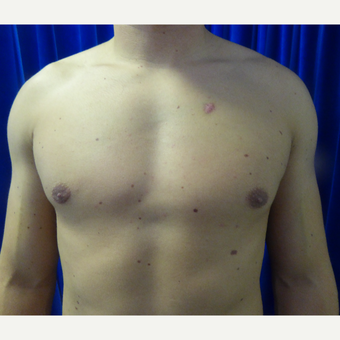 18-24 year old man treated with Male Breast Reduction after 3501845