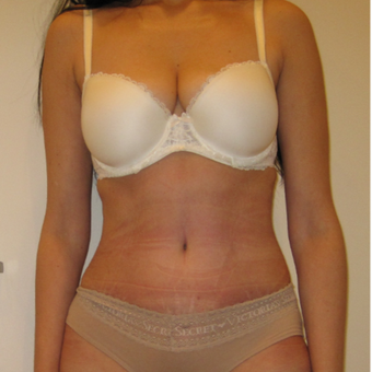 Tummy Tuck results for a 44 year old mother after 2520203
