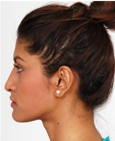 18-24 year old woman treated with Rhinoplasty after 3259438