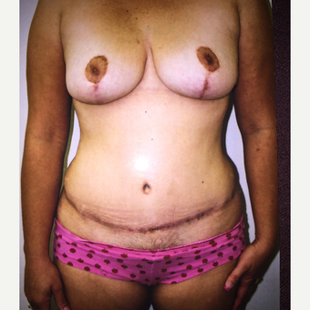 45-54 year old woman treated with Mommy Makeover after 3333582