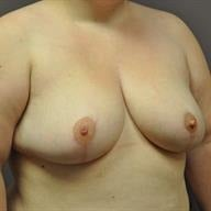 25-34 year old woman treated with Breast Reduction 1745821