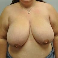 25-34 year old woman treated with Breast Reduction before 1745821