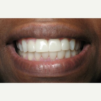 25-34 year old woman treated with Porcelain Veneers after 1640052