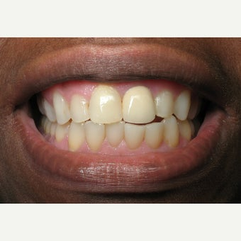 25-34 year old woman treated with Porcelain Veneers before 1640052