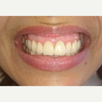 40 year old woman treated with Porcelain Veneer and Bridge and Gum Lifting after 3854226
