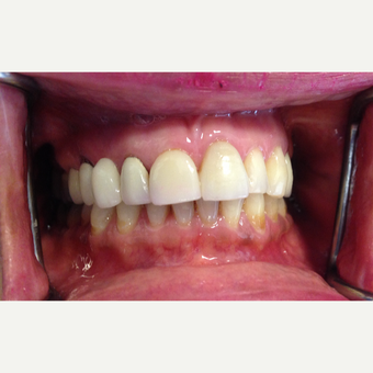 40 year old woman treated with Porcelain Veneer and Bridge and Gum Lifting before 3854226