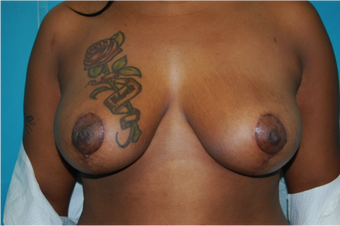 6 Month Post Operative Breast Reduction after 1112382