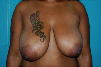 6 Month Post Operative Breast Reduction before 1112382
