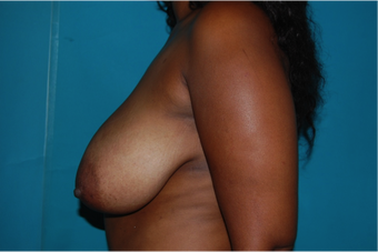 6 Month Post Operative Breast Reduction 1112382