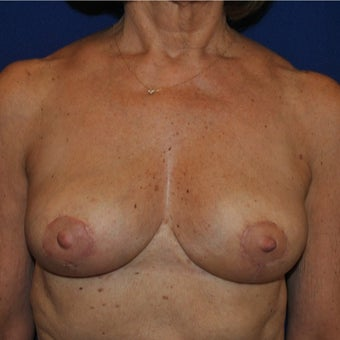 Breast Reduction on 65-year-old woman after 1744121