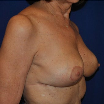 Breast Reduction on 65-year-old woman 1744121