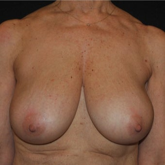 Breast Reduction on 65-year-old woman before 1744121