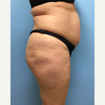39 year old woman treated with Lipo 360, Tummy Tuck, and Brazilian Butt Lift before 3065244