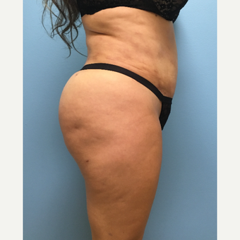39 year old woman treated with Lipo 360, Tummy Tuck, and Brazilian Butt Lift after 3065244