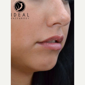 18-24 year old woman treated with Lip Augmentation before 3494803