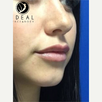 18-24 year old woman treated with Lip Augmentation after 3494803