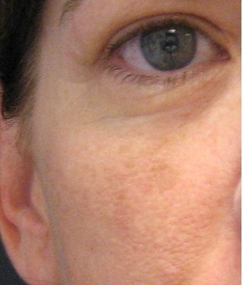 Photo-facial (IPL) rejuvenation before 1328589