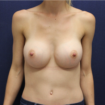 25-34 year old woman treated with Breast Augmentation after 3383164