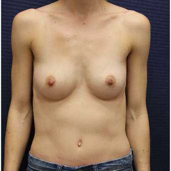 25-34 year old woman treated with Breast Augmentation before 3383164