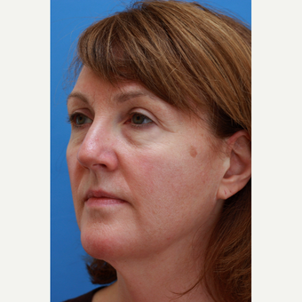 Woman treated with Revision Facelift and Fat Grafting before 3104757