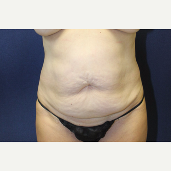 55-64 year old woman treated with Tummy Tuck before 3651687