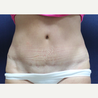 55-64 year old woman treated with Tummy Tuck after 3651687