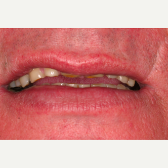 62 year old male with worn dentition treated with smile makeover procedures before 3395054