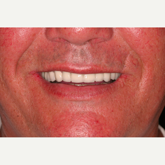 62 year old male with worn dentition treated with smile makeover procedures after 3395054