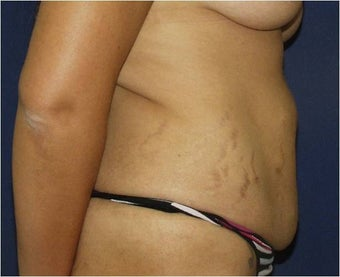 35 year old Hispanic female with loose abdominal skin, excess volume, and stretch marks requesting surgery. before 1210830