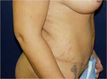 35 year old Hispanic female with loose abdominal skin, excess volume, and stretch marks requesting surgery. after 1210830