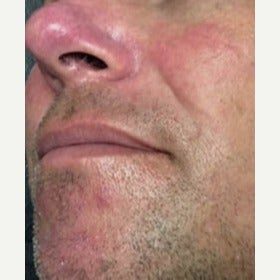 35-44 year old man treated with KTP laser for Rosacea Treatment after 2081923