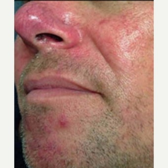 35-44 year old man treated with KTP laser for Rosacea Treatment before 2081923
