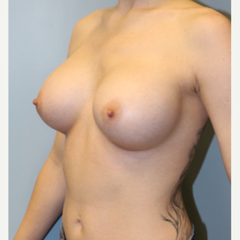 25-34 year old woman treated with Breast Augmentation after 3692116