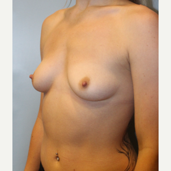25-34 year old woman treated with Breast Augmentation before 3692116