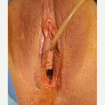 35-44 year old woman treated with Vaginal Rejuvenation before 2863800