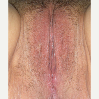 35-44 year old woman treated with Vaginal Rejuvenation after 2863800