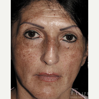 45-54 year old woman treated with Chemical Peel before 3417721