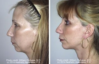 Face lift with chin implant side view before 6754