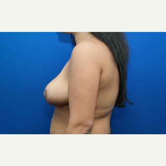 35-44 year old woman treated with Breast Reduction after 3104164