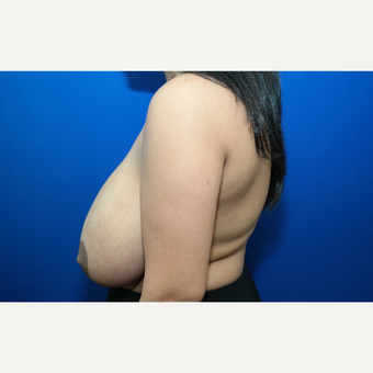 35-44 year old woman treated with Breast Reduction before 3104164